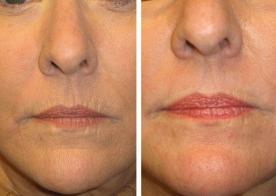 mircodermabrasion lips